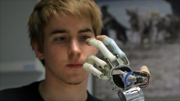 Bionic-hand-for-Paralysis-Solutions