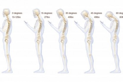 Az okostelefonok gerincünknek sem tesznek jót