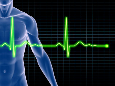 EKG ECG_10.19.14_NoBorder
